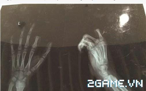 Kinh hoàng cậu bé tự chặt ngón tay vì bị phụ huynh nhắc nhở khi chơi game 0