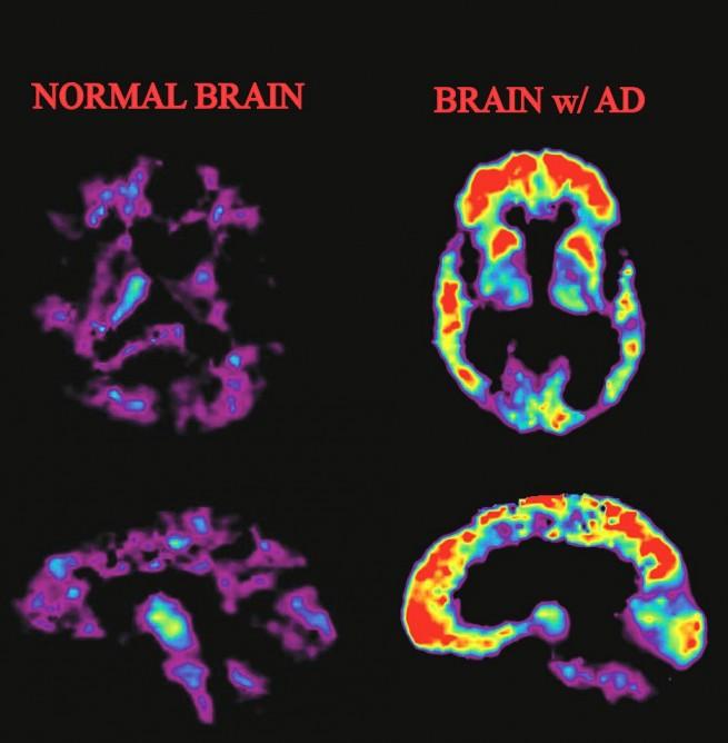 Alzheimer_02.jpg