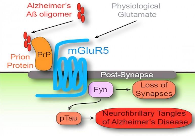 Alzheimer_03.jpg