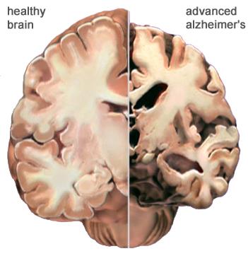 alzheimer_brain.jpg