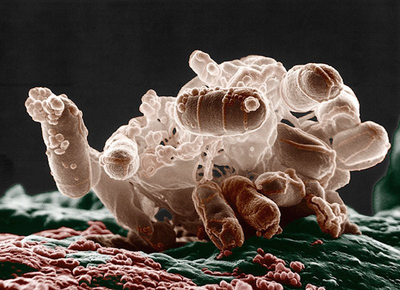 Tinhte-e-coli.jpg
