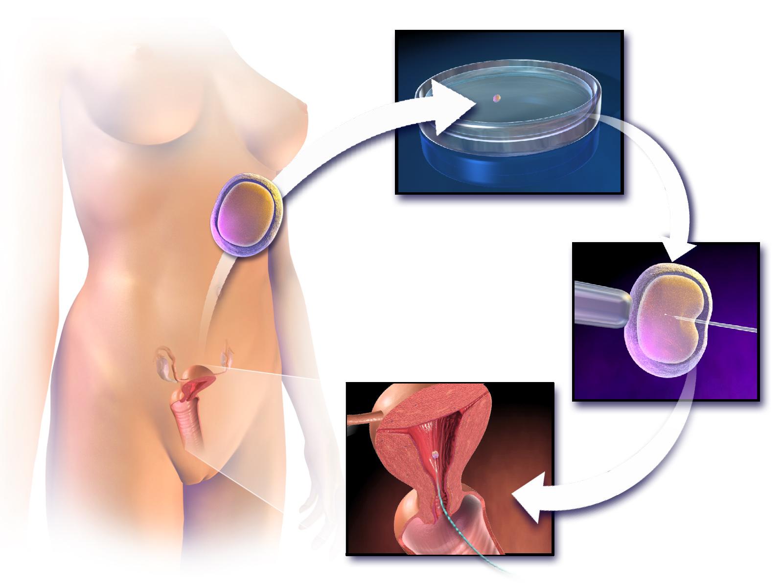 Blausen_0060_AssistedReproductiveTechnology.png