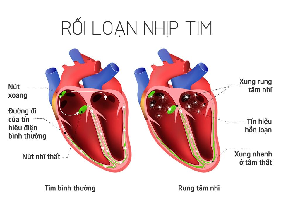 loan_nhip_tim_Tinhte.jpg
