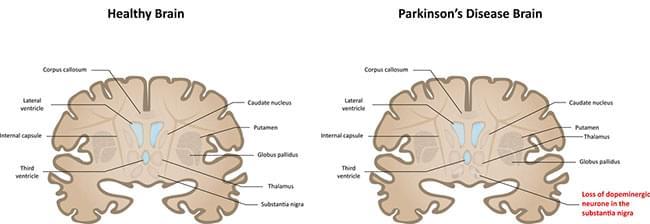 parkinson brain_1.jpg