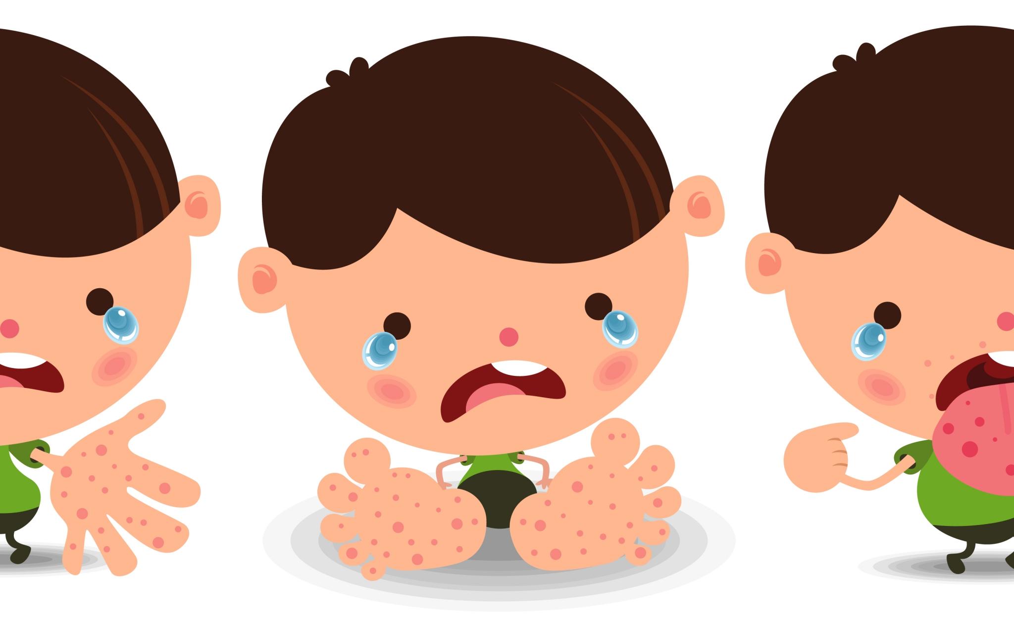 Một vài chú ý về bệnh tay chân miệng đang bùng phát trở lại (ver.2021)