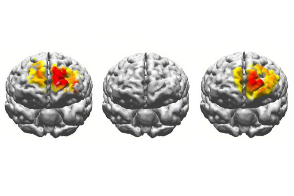 electrostimulation-brain-comparison.jpg